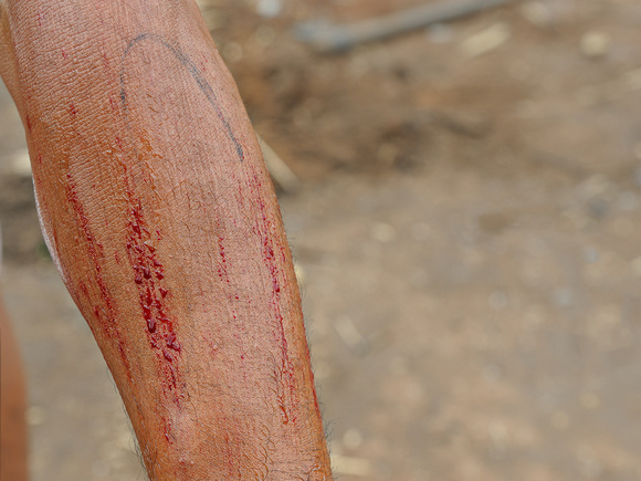 Fragile Skin Bleeding - Dermatology Associates of Alabama